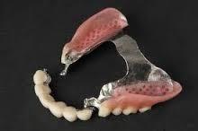 protesis la bordeta dental